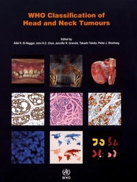 WHO Classification of Head and Neck Tumours.pdf