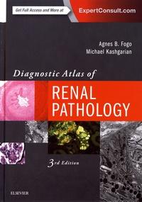 Lesmouchescestlouche.fr Diagnostic Atlas of Renal Pathology Image