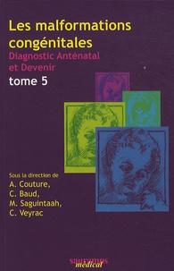 Alain Couture et Catherine Baud - Les malformations congénitales - Diagnostic anténatal et devenir Tome 5.