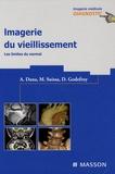 Alain Dana et Mickaël Suissa - Imagerie du vieillissement - Les limites du normal.