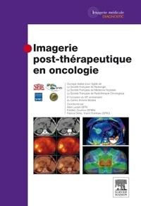 Imagerie post-thérapeutique en oncologie.pdf