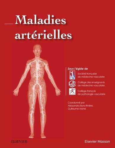 Alessandra Bura-Rivière et Guillaume Mahé - Maladies artérielles.