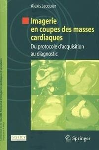 Alexis Jacquier - Imagerie en coupes des masses cardiaques - Du protocole d'acquisition au diagnostic.