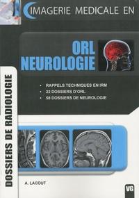 Alexis Lacout - ORL neurologie - Dossiers de radiologie.