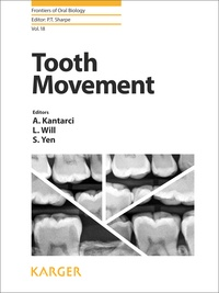 Alpdogan Kantarci et Leslie Will - Tooth Movement.