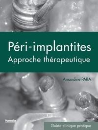 Péri-implantites- Approche thérapeutique - Amandine Para pdf epub
