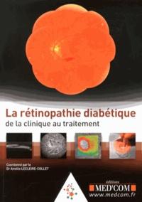 Histoiresdenlire.be La rétinopathie diabétique Image