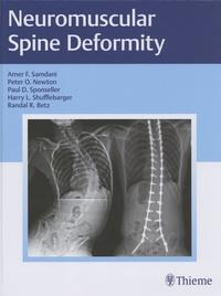 Amer F. Samdani et Peter O. Newton - Neuromuscular Spine Deformity.