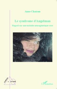 Ucareoutplacement.be Le syndrome d'Angelman - Regard sur une maladie neurogénétique rare Image