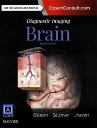 Openwetlab.it Diagnostic Imaging: Brain Image