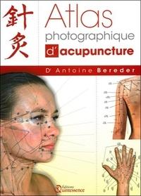 Histoiresdenlire.be Atlas photographique d'acupuncture Image