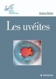Antoine Brézin - Les uvéites.
