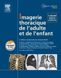 Imagerie thoracique de l'adulte et de l'enfant.pdf