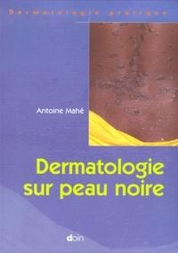 Antoine Mahe - .