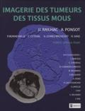 Antoine Ponsot et Jean-Jacques Railhac - Imagerie des tumeurs des tissus mous.