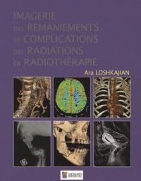 Checkpointfrance.fr Imagerie des remaniements et complications des radiations en radiothérapie Image