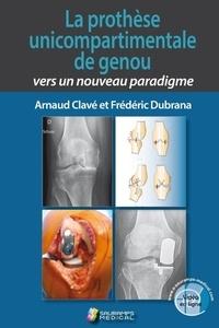 Arnaud Clavé et Frédéric Dubrana - La prothèse unicompartimentale de genou : vers un nouveau paradigme.