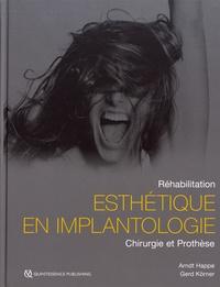 Arndt Happe et Gerd Körner - Réhabilitation esthétique en implantologie - Chirurgie et prothèse.