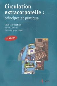 Jean-Jacques Lehot - Circulation extracorporelle : principes et pratique.