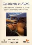Association Césarine - Césarienne et AVAC - Comprendre, préparer et vivre ces naissances particulières.