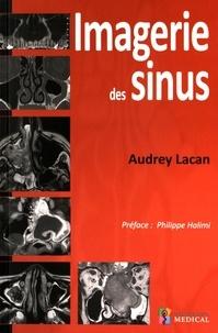 Audrey Lacan - Imagerie des sinus.