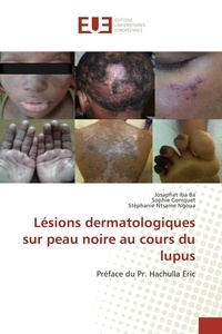 Ba josaphat Iba - Lésions dermatologiques sur peau noire au cours du lupus.