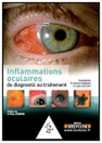 Linflammation oculaire.pdf