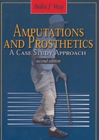 Bella-J May - Amputations and Prosthetics - A case study approach.