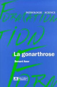 La gonarthrose.pdf