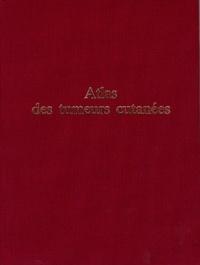 Bernard Guillot et Jean-Bernard Dubois - Atlas des tumeurs cutanées.