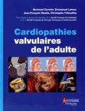 Bertrand Cormier et Emmanuel Lansac - Cardiopathies valvulaires de l'adulte.