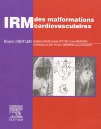 Bruno Kastler et  Collectif - IRM des malformations cardiovasculaires.