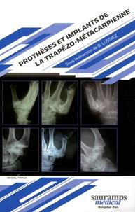Prothèses et implants de la trapézo-métacarpienne.pdf