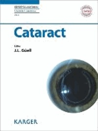 Cataract.