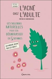 Cécile Vernier - L'acné chez l'adulte - Les solutions naturelles pour s'en débarrasser en 5 semaines. Ca marche aussi sur les ados !.