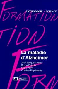 Galabria.be La maladie d'Alzheimer Image