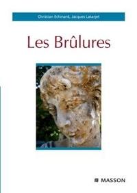 Deedr.fr Les Brûlures Image
