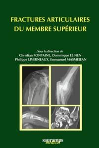 Christian Fontaine et Dominique Le Nen - Fractures articulaires du membre supérieur.