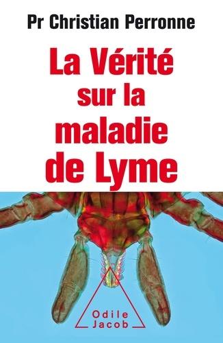 Spécialiste Maladie De Lyme Paris