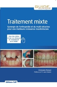 Christophe Moinard - Traitement mixte - Synergie de l'orthopédie et du multi-attaches pour une meilleure croissance maxillo-faciale.