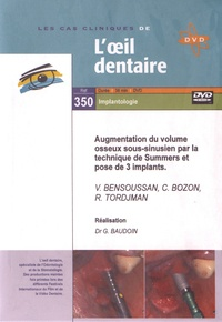 V Bensoussan et C Bozon - Augmentation du volume osseux sous-sinusien par la technique de Summers et pose de 3 implants. 1 DVD