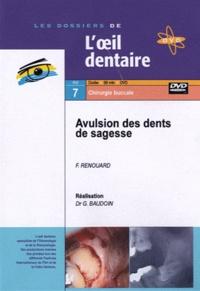 Franck Renouard et Gérard Baudoin - Avulsion des dents de sagesse. 1 DVD