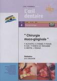 Gérard Baudoin - Chirurgie muco-gingivale. 1 DVD