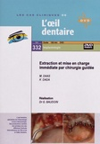 Gérard Baudoin - Extraction et mise en charge immédiate par chirurgie guidée. 1 DVD