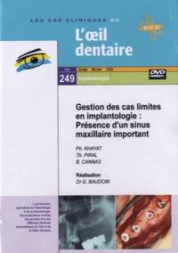 Philippe Khayat et Thierry Piral - Gestion des cas limites en implantologie : Présence d'un sinus maxillaire important. 1 DVD