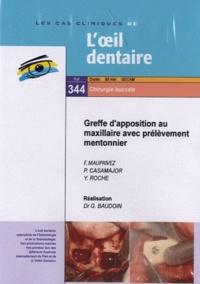 F Mauprivez et Philippe Casamajor - Greffe d'apposition au maxillaire avec prélèvement mentonnier. 1 DVD