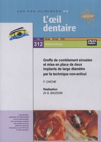 Gérard Baudoin - Greffe de comblement sinusien et mise en place de deux implants de large diamètre par la technique non-enfoui. 1 DVD