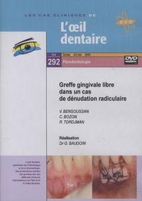 Gérard Baudoin - Greffe gingivale libre dans un cas de dénudation radiculaire. 1 DVD