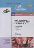 Gérard Baudoin - Greffe pédiculée de conjonctif enfoui et pose d'un implant en 24. 1 DVD