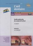 Gérard Baudoin - Greffe pédiculée de conjonctif enfoui. 1 DVD